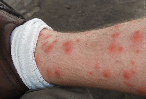 flickr_photo_of_chigger_bites_on_leg