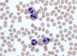 Neutrophils