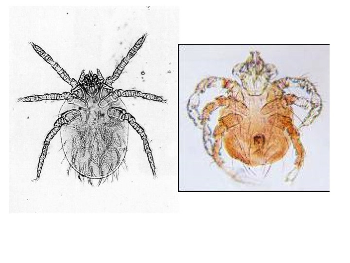 An Introduction to Chiggers - The Infinite Spider